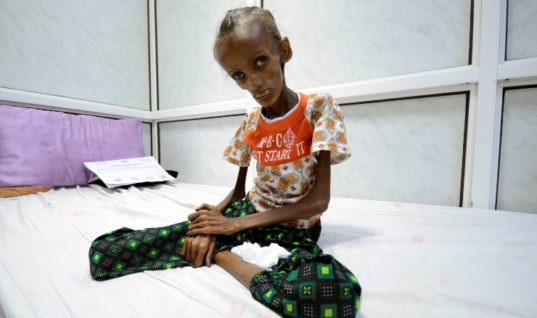 Yemen On the Brink of Famine: Here's What You Need To Know