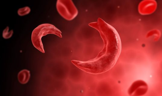 French Doctors Invent New Treatment for Sickle Cell Disease